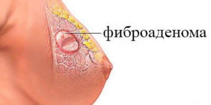 Как мне лечиться от фиброаденомы?