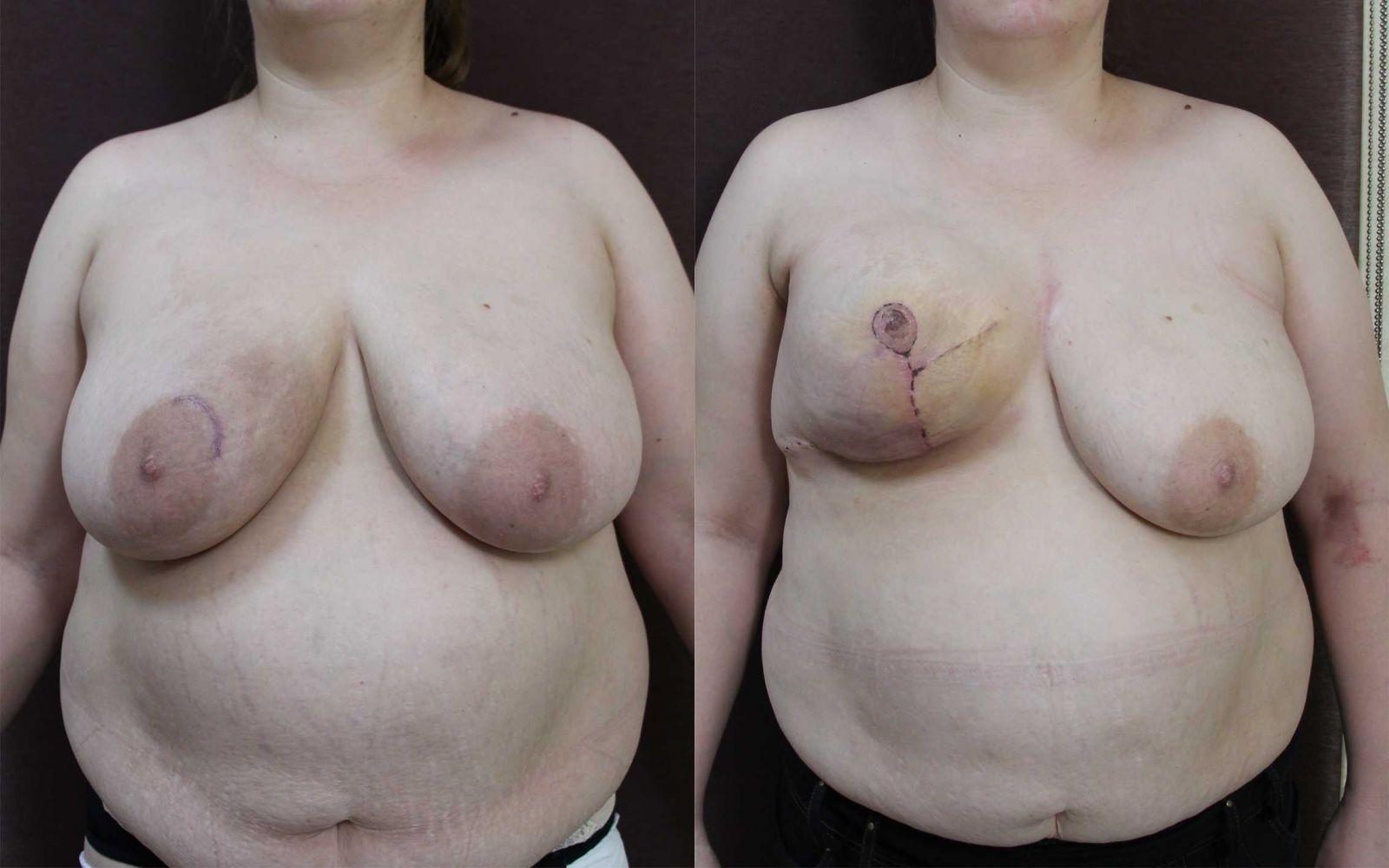 Фото отрезанная грудь 21 фотография